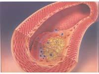動脈硬化のおきた血管